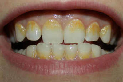 Online Certificate in Plaque Indices including Periodontal Charting